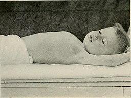 respiratoor-afektiivsed hood hingekinnihoidmishood nutukramp nutukrambid laps ei hinga minestus