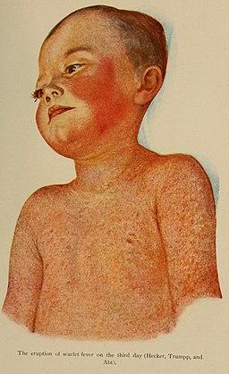 sarlakid angiin lööve vaarikakeel streptokokk tonsilliit