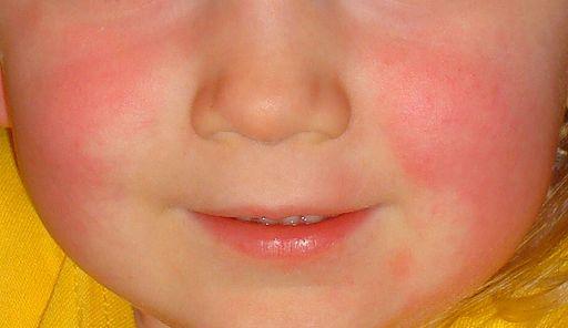 sarlakid lööve angiin tonsilliit kurguvalu põsed punased antibiootikumid